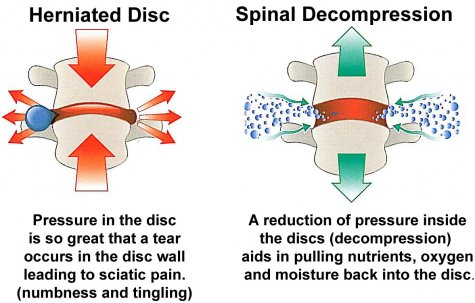 Non Surgical Spinal Decompression Therapy Non Surgical